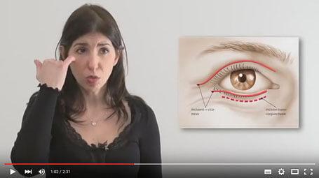 Vidéo : blépharoplastie