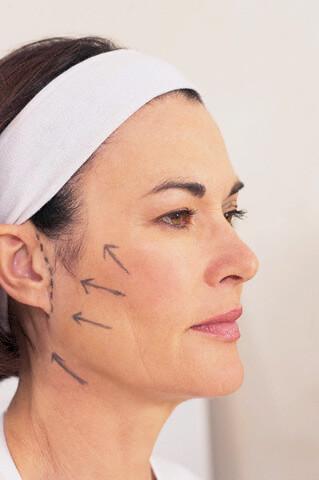 Lifting cervico-facial : avant l'opération