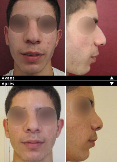 Rhinoplastie avant après : bosse nasale
