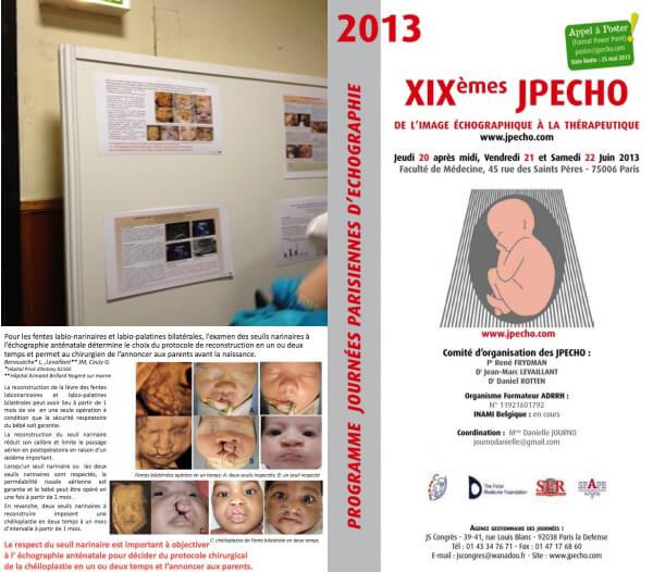 Poster Jpecho 2013 : Échographie et fente labio-palatine