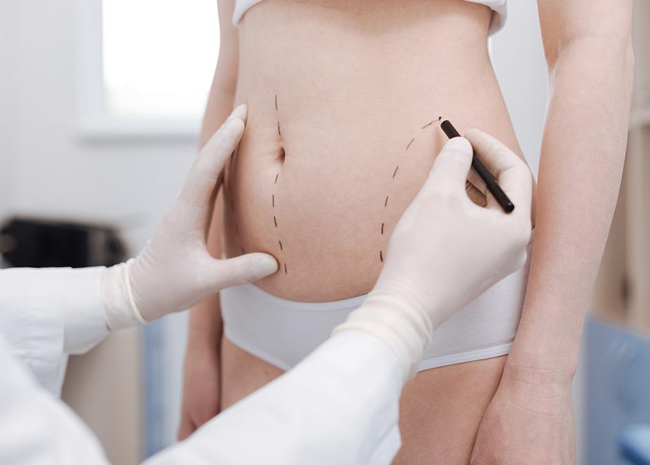 Cryolipolyse versus liposuccion - Dr Benouaiche, chirurgien esthétique à Paris
