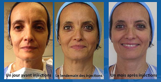 Injections Juvederm avant/apres