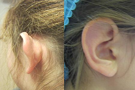 Chirurgie reconstructrice : otoplastie