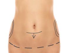 Retrouver un ventre plat après une grossesse