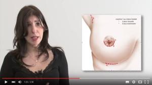 Video : augmentation mammaire, les différentes possibilités