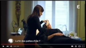 Botox : les rides de la patte d'oie (vidéo)