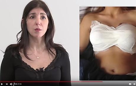 Vidéo : hypertrophie et ptose mammaire - Dr Benouaiche - Paris