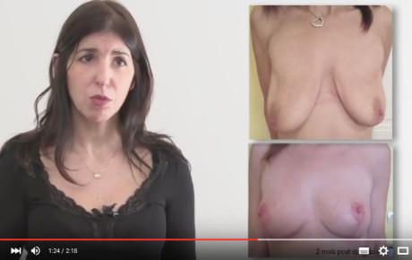 Vidéo : réduction mammaire