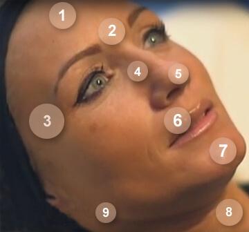 La toxine botulique et les rides du visage
