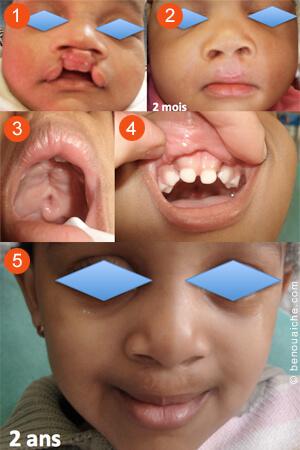 Opération d'une fente labio-palatine en deux fois