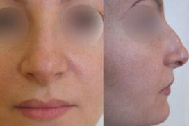 Chirurgie esthétique du visage : rhinoplastie