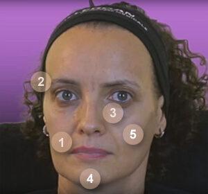 Injections Juvéderm sur le visage