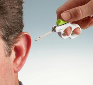 La technique Earfold pour remodeler les oreilles