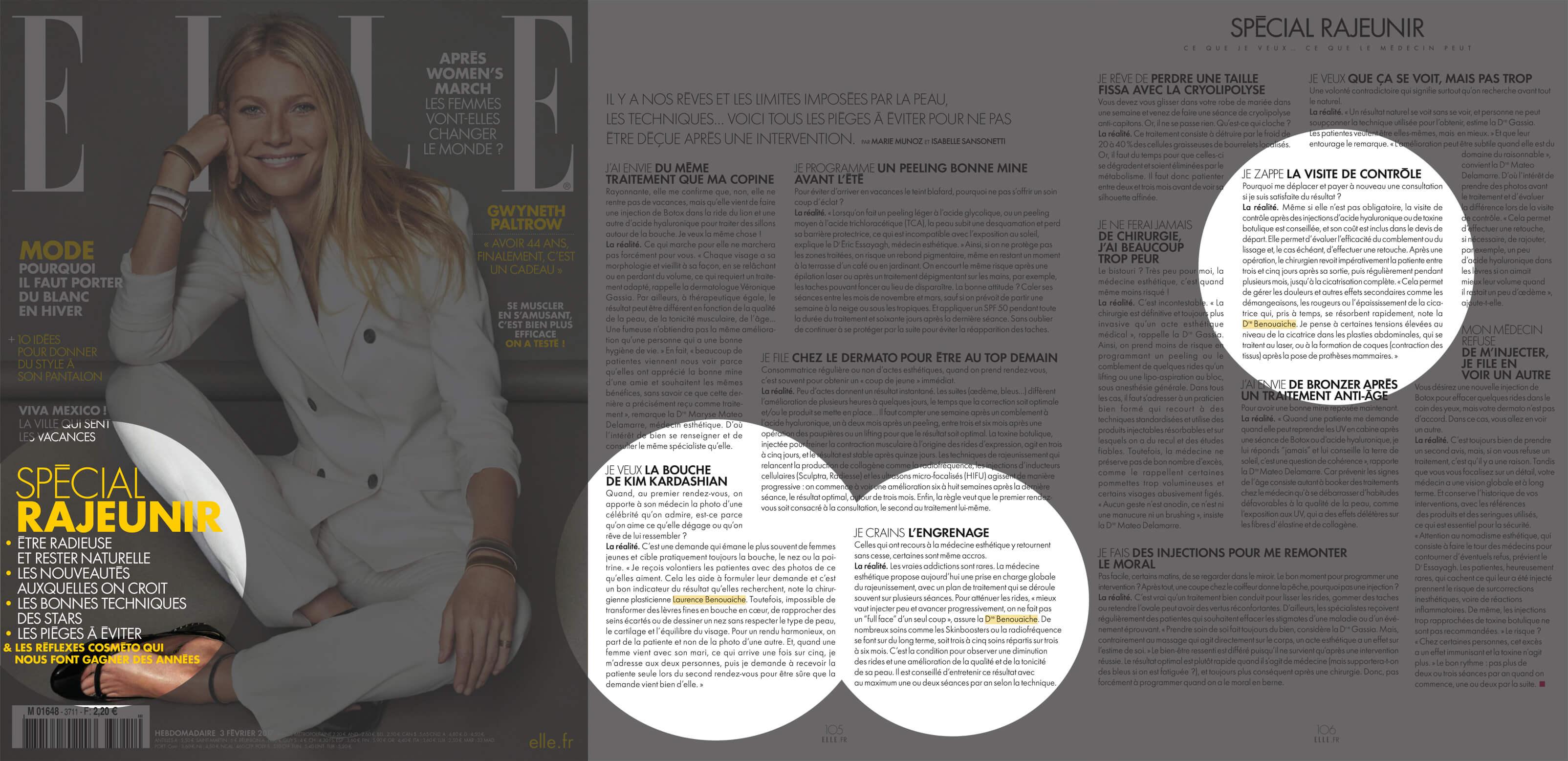 ELLE, février 2017- Interview Dr Benouaiche