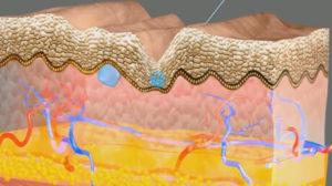 Mésothérapie : protéger la peau du vieillissement
