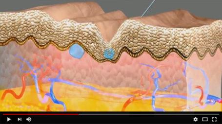 Vidéo : mésothérapie visage