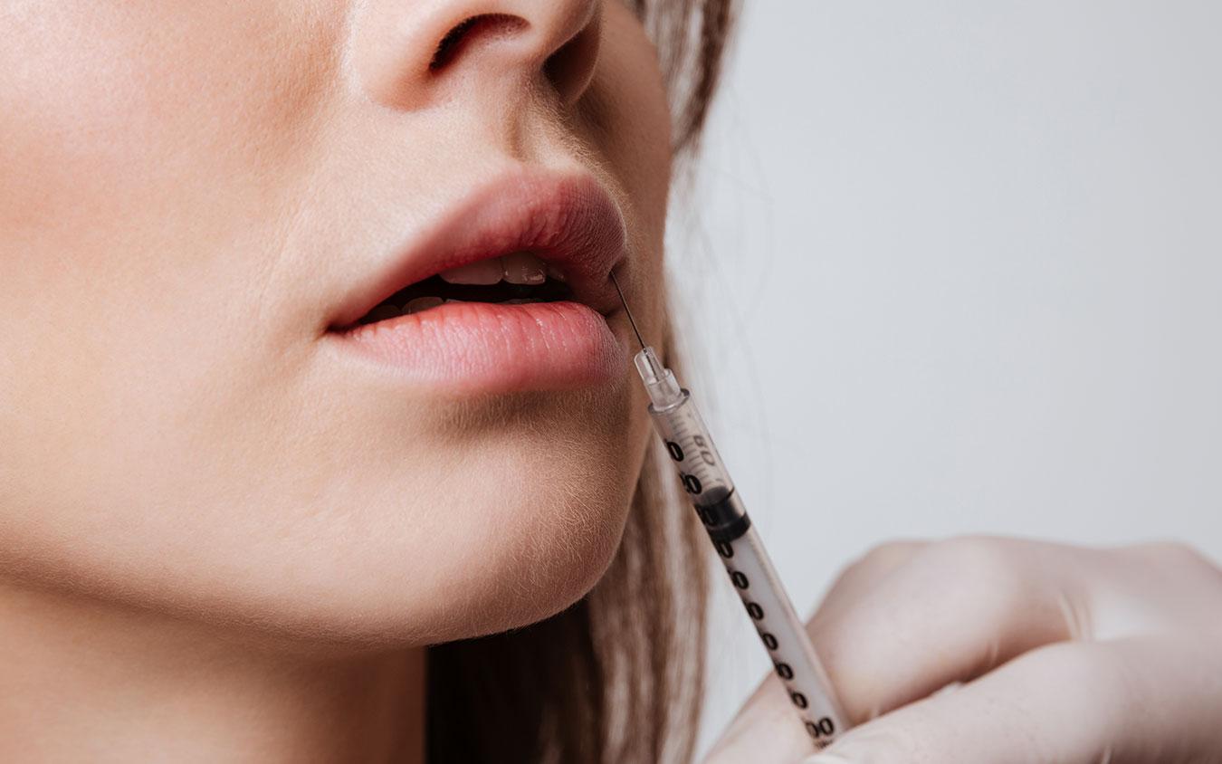 Acide hyaluronique pour repulper les lèvres - Dr Benouaiche - Paris