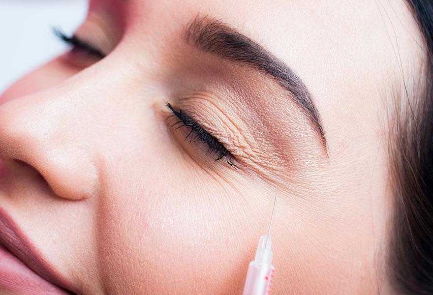 Botox contre les rides - Dr Benouaiche - Paris