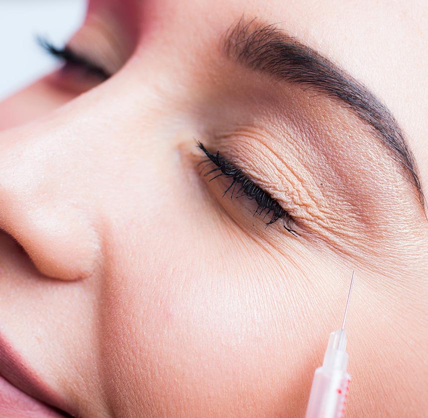 Botox pour les rides du visage