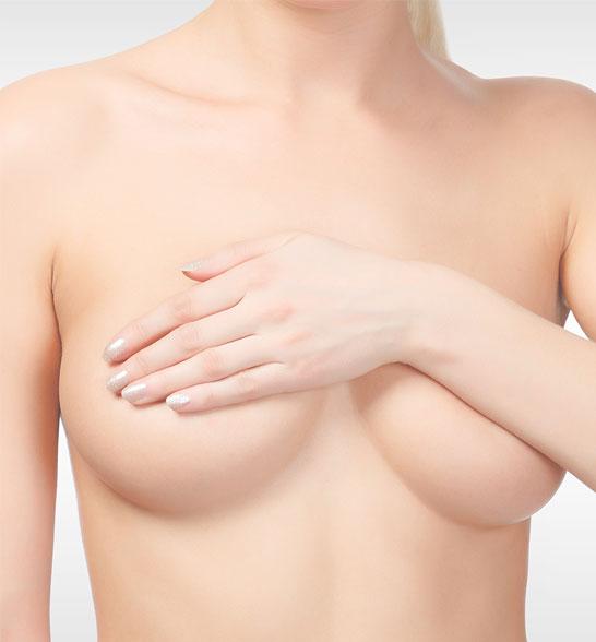 Augmentation mammaire - Dr Benouaiche - Paris