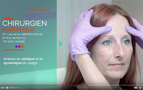 Vidéo : Résultat d'une séance de Botox pour effacer les rides du visage.
