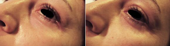 Vallée des larmes : injections d'acide hyaluronique