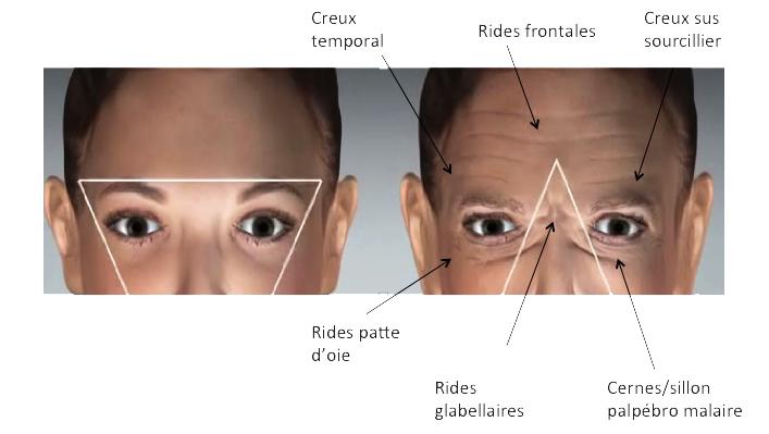 Zone du regard : les interventions en médecine esthétique