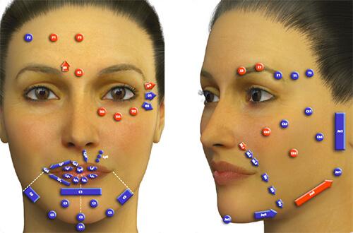 MD Codes, un exemple de marquage des points clés du visage à traiter