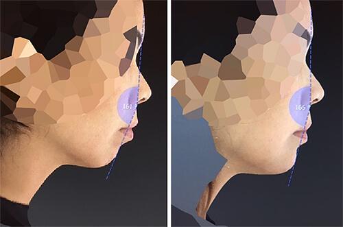 Exemple avant-après d'un traitement du menton par la technique MD Codes d'analyse et d'injection.