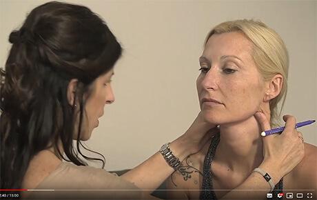 Lifting du cou sans chirurgie (fils résorbables Aptos)