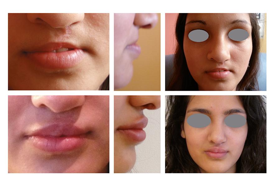 Avant Après : traitement par injection d'acide hyaluronique dans la lèvre supérieure d'une adolescente durant le processus de prise en charge chirurgicale d'une fente labio-palatine.